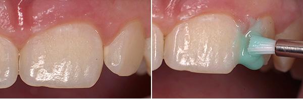 На фото показан начальный этап лечения кариеса по технологии Icon