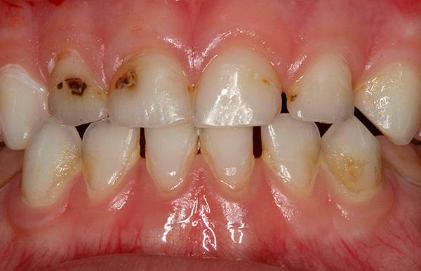 Когда белые кариозные пятна пигментируются и углубляются, одной лишь реминерализующей терапией будет уже не обойтись...