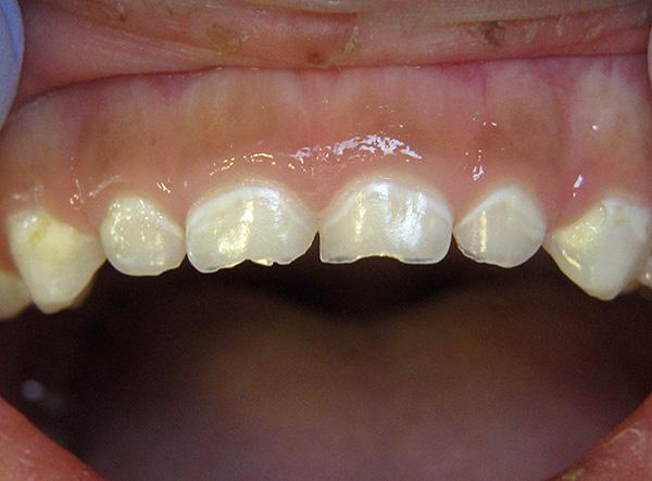 Кариес в стадии пятна на молочных зубах