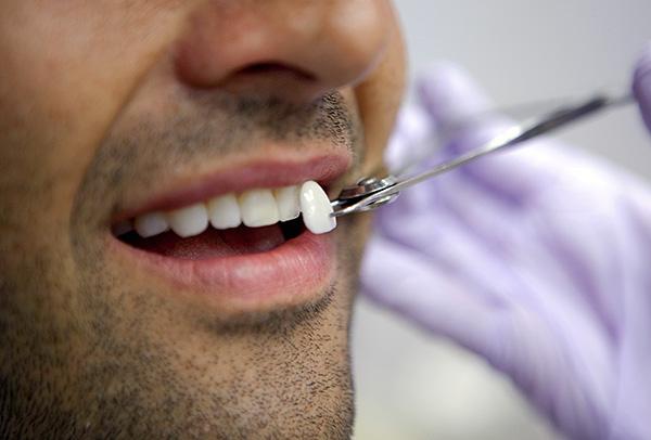 Виниры представляют собой тонкие накладки (например, керамические), позволяющие существенно улучшить внешний вид проблемных зубов.