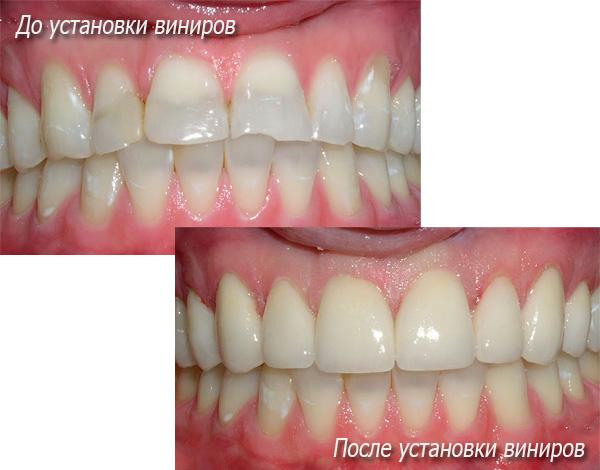 На фото показано состояние зубов пациента до и после установки виниров...