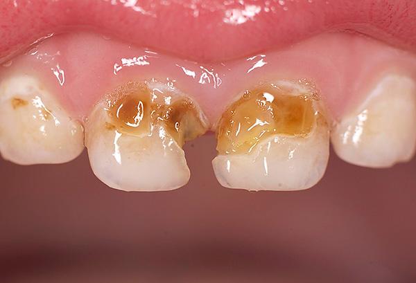 Если на начальной стадии кариеса не принять должных мер по его лечению, то белые пятна постепенно пигментируются и углубляются.