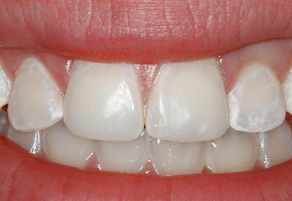 Обычно кариес в стадии белого (мелового) пятна наиболее хорошо бывает заметен на фронтальной группе зубов.