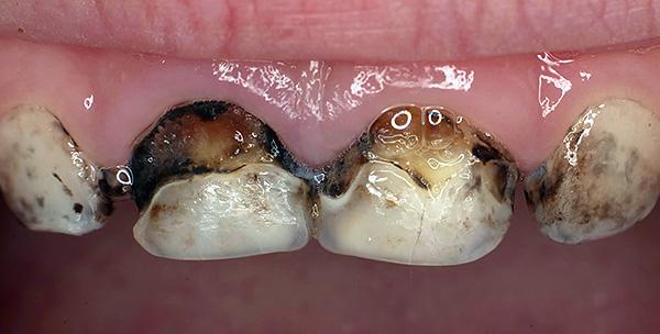 Зачастую серебрение зубов не оказывает существенного влияния на дальнейшее развитие кариозного процесса.