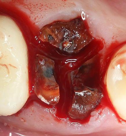 Корни зуба разделены бормашиной для упрощения процедуры удаления их из лунки.