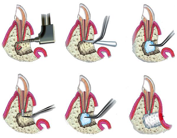 На картинках схематично показана процедура резекции верхушки корня зуба.