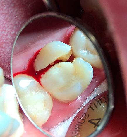 При таком переломе зуба он, как правило, подлежит удалению.