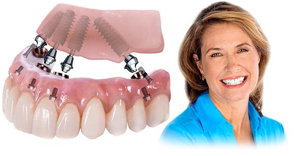 Знакомимся с технологиями протезирования зубов All-on-4 и All-on-6, их преимуществами и недостатками...