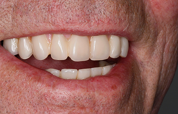 А так выглядит результат протезирования зубов по методу All-on-4.