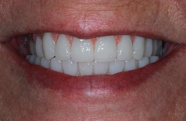 """В целом можно сказать, что протезирование зубов по технологии """"все на четырех"""" - это довольно дорогостоящее удовольствие."""
