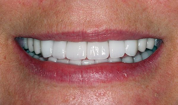 Несмотря на то, что технология восстановления зубных рядов All-on-4 позволяет в краткие сроки восстанавливать эстетику и способность пережевывать пищу, далеко не в каждой клинике удастся найти имплантолога, владеющего данной методикой.