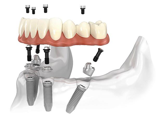 На картинке схематично изображена концепция технологии протезирования зубов All-on-4.
