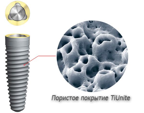 Поверхность титановых имплантов имеет специальное пористое покрытие, облегчающее процесс срастания имплантата с костной тканью.