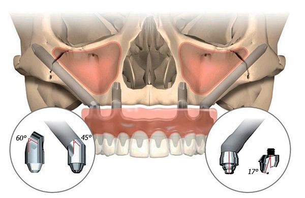 При реализации технологии All-on-4 благодаря наклонной установке имплантов удается, в частности, избежать повреждения носовых пазух и челюстных нервов.