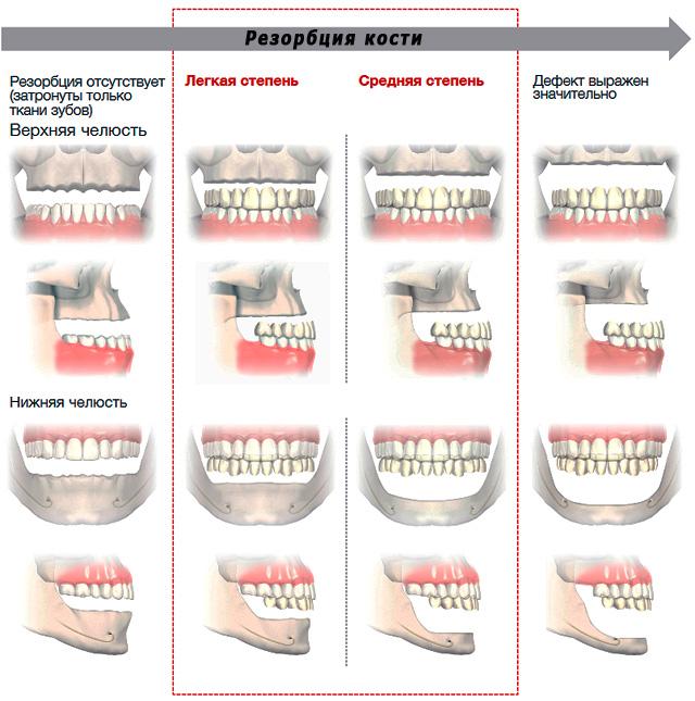 На картинке показано, как выглядят челюсти человека при разной степени выраженности резорбции кости.