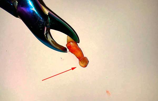 Поговорим об удалении и способах лечения так называемой корневой кисты зуба...