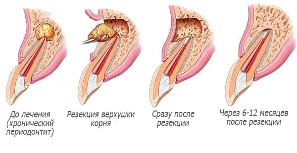 Схема проведения резекции верхушки корня зуба