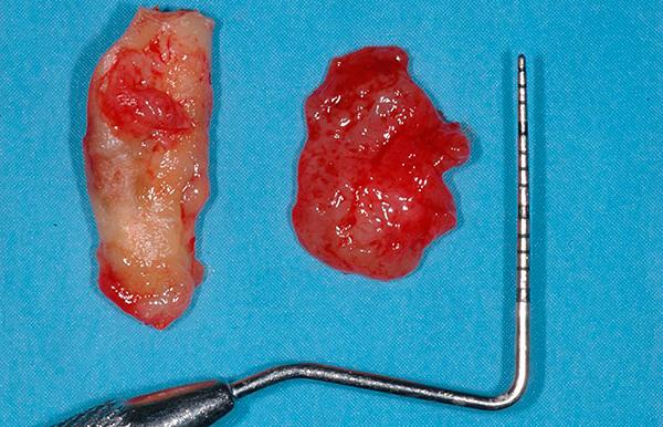 На фотографии показана удаленная киста зуба.