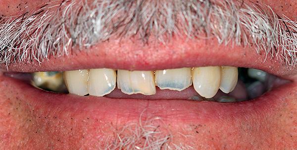 Сегодня принято считать, что инфекционные очаги у корней зуба создают дополнительные риски развития заболеваний сердечно-сосудистой системы.