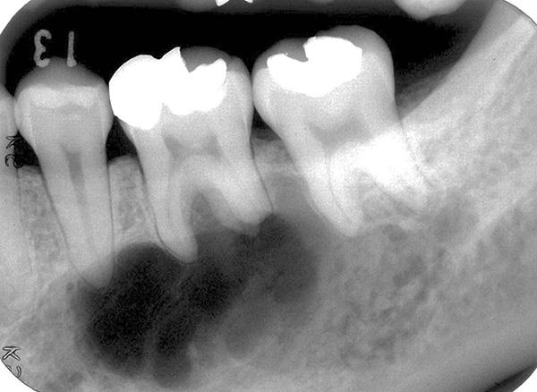 Пример ситуации, когда киста захватывает корни сразу двух зубов.