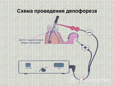На картинке показана схема проведения депофореза