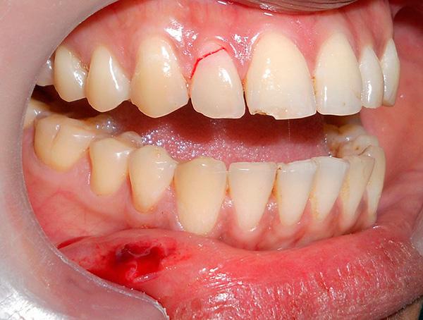 На фотографии хорошо видна трещина в зубе - он уже не подлежит реставрации, предполагается его удаление с последующим протезированием на импланте.