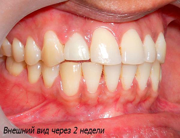 Так выглядит результат имплантации через 2 недели - искусственный зуб не отличить от родных.