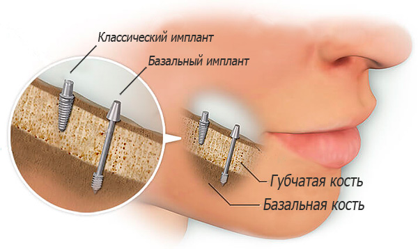В большинстве случаев базальная имплантация проводится без предварительного наращивания костной ткани, так как надежная фиксация импланта достигается за счет его установки в глубокие слои кости.