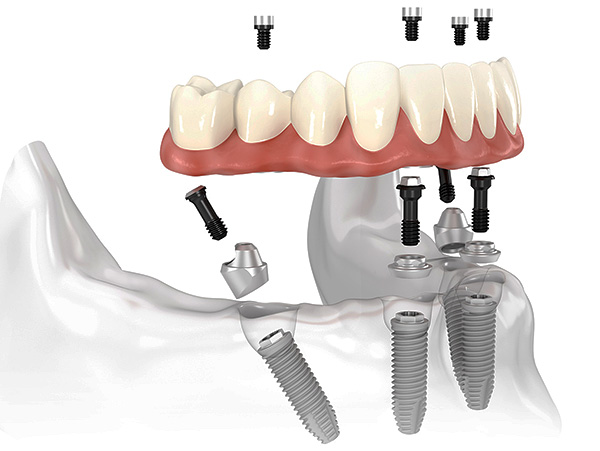Одним из популярных сегодня видов имплантации зубов является технология All-on-4.