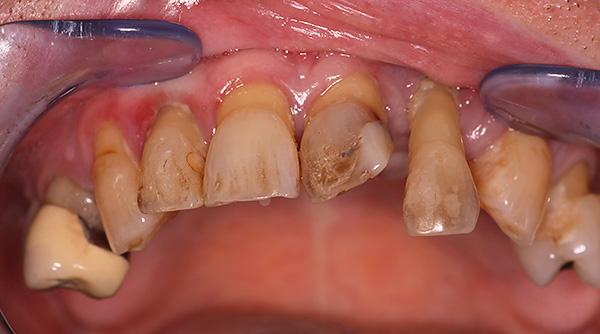 На фото показан внешний вид зубов до протезирования...