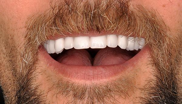 Имплантация зубов с немедленной нагрузкой позволяет в сжатые сроки получить такую вот улыбку по цене порядка 300 000 руб.