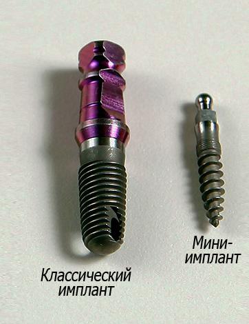 По сравнению с классическими имплантами, мини-импланты не способны ведерживать значительной нагрузки.