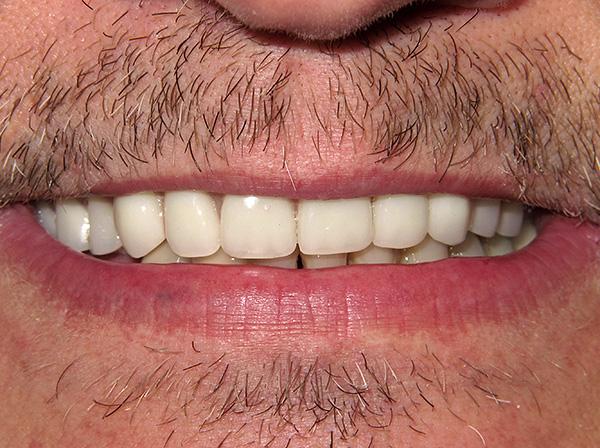 Эстетика и функциональность зубного ряда восстановлены.