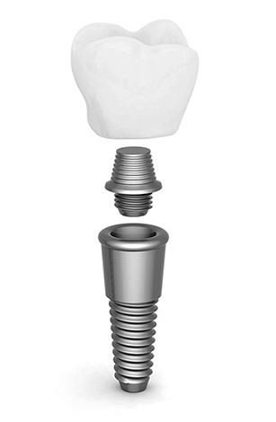 Стоимость коронок может вносить весьма существенный вклад в итоговую цену протезирования зубов на имплантах.