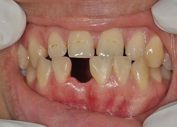 На нижней челюсти был удален один из передних зубов, лунка уже зажила.