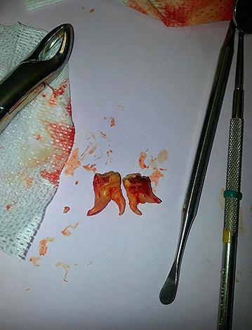 На удаление зуба лучше записываться с утра, так как в это время в кабинете стоматолога-хирурга еще достаточно чисто.