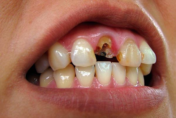 Нередко зуб ломается так, что корень уже не может быть использован в качестве опоры для вкладки и коронки - в этом случае корень подлежит экстракции.