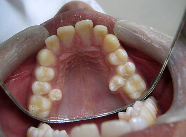 Сверхкомплектные зубы в большинстве случаев удаляются.
