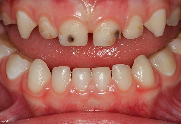 Даже молочные зубы при необходимости нужно обязательно лечить, чтобы избежать их преждевременной потери.