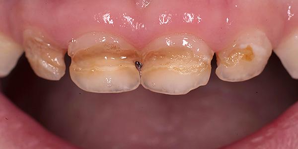 Еще одно фото с примером кариеса молочных зубов у ребенка.