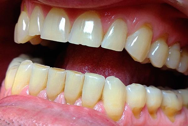 Область клиновидных дефектов зачастую характеризуется повышенной чувствительностью, так как зубная эмаль здесь истончена.