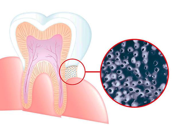 На картинке схематично показано обнажение дентина в пришеечной зоне зуба - дентин пронизан тончайшими канальцами, ведущими к пульпе.