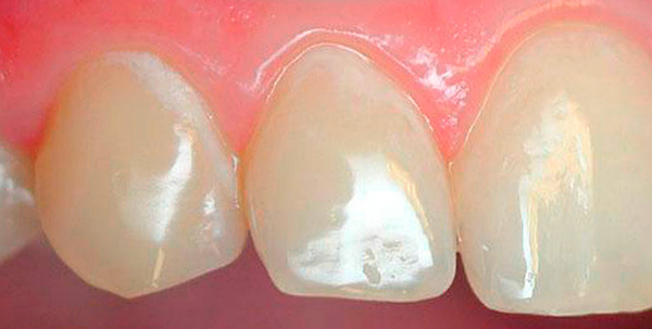 Белые участки на зубах - зоны интенсивной деминерализации эмали (кариес в стадии белого пятна).