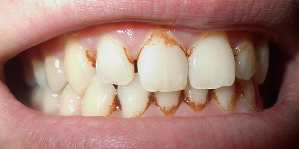 При сильно выраженном зубном налете осветляющих свойств пасты Бережное осветление эмали может оказаться недостаточно.