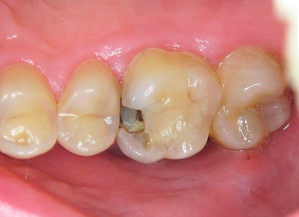Ни одна зубная паста не восстанавливает зубы, если в них уже сформировались глубокие кариозные полости.