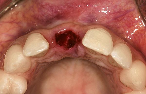 Важно соблюдать все рекомендации врача по уходу за раной после удаления зуба, иначе повышается риск развития серьезных осложнений.