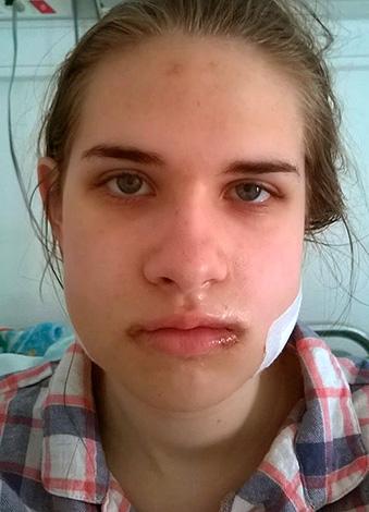 как снять отек с лица после аллергии