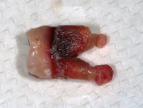 Зуб с кистами на корнях