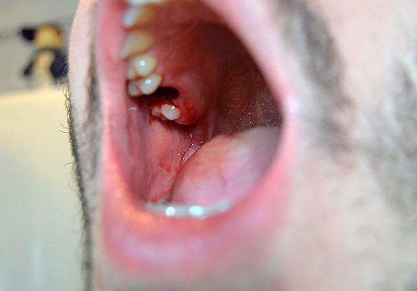 С помощью ряда приемов можно существенно уменьшить отекание тканей после удаления зуба...