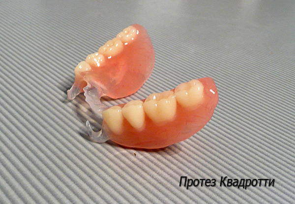 Зубной протез Квадротти (Quattro Ti)